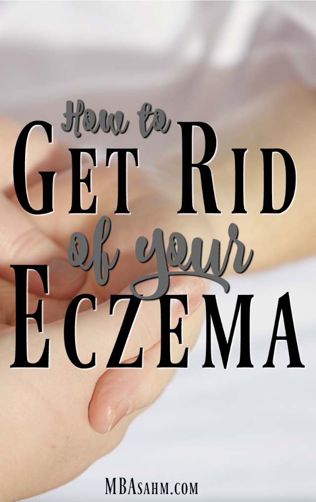 This eczema remedy is the only thing that worked on my family. It's a miracle worker!